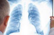 """[audio mp3=""""http://radiomaria.org.ar/_audios/vivianamoyano.mp3""""][/audio] 12/09/2019 -La fibrosis pulmonar es una afección en la cual el tejido de los pulmones cicatriza y, por lo tanto, se…"""